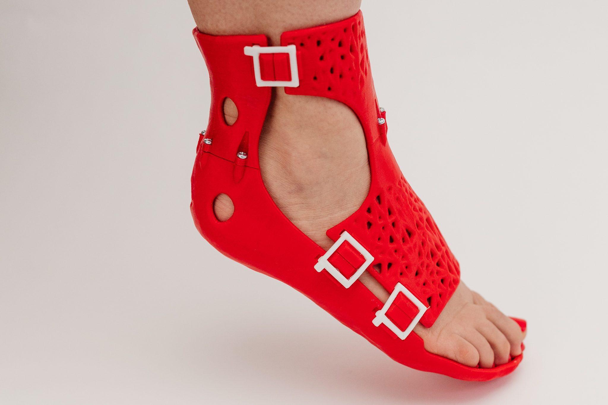 A CastPrint foot brace.