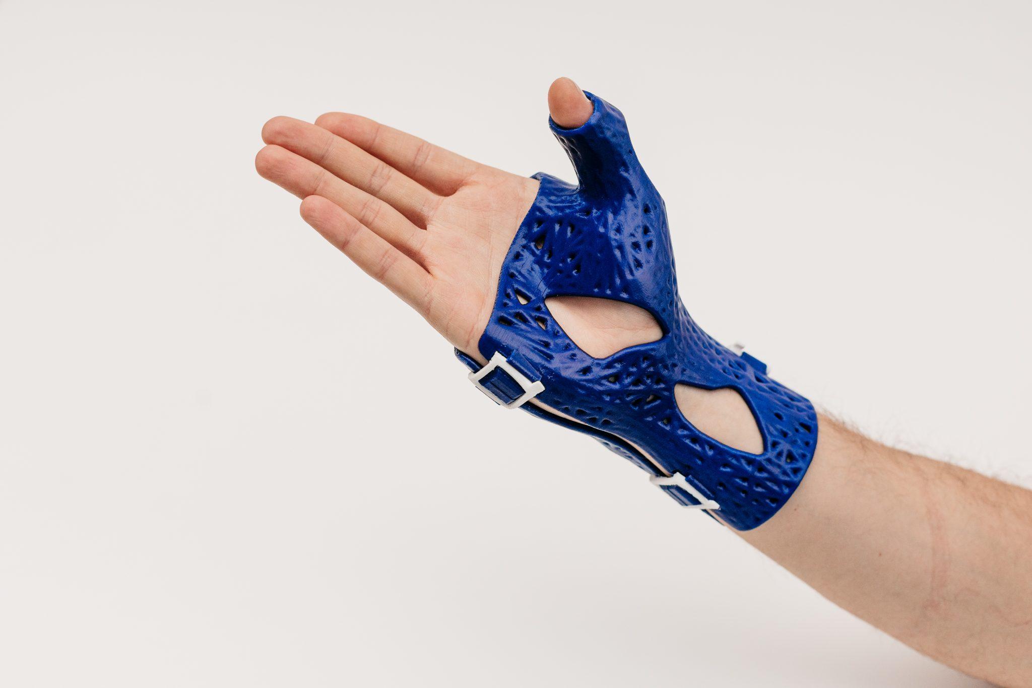 A CastPrint wrist brace.