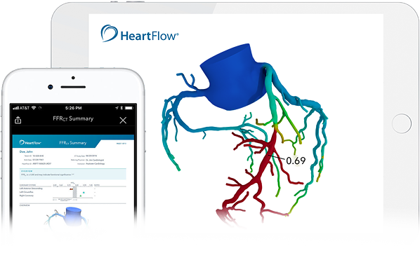Image of the functionality of healthcare innovation HeartFlow; the mobile dashboard and how you can monitor HeartFlow in the human body.
